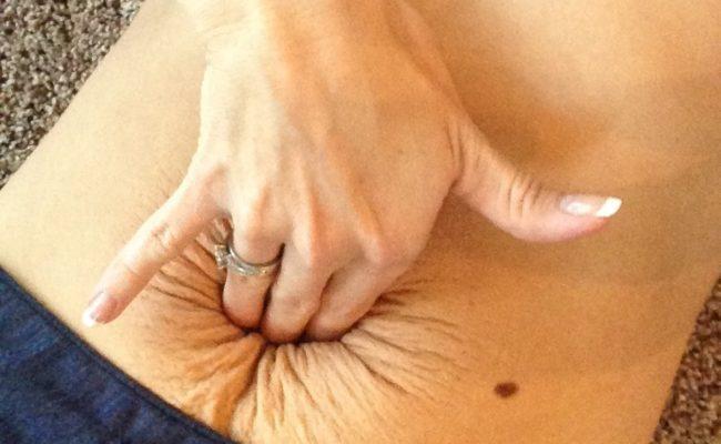 diastasi dei muscoli retti